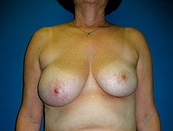 Before Breast Reconstruction Patient 2
