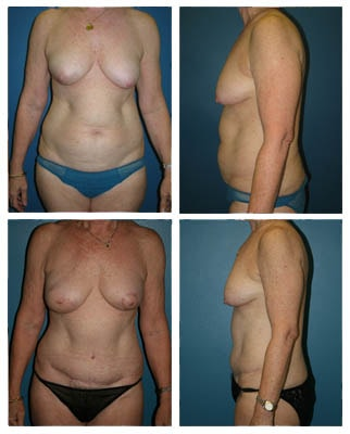 Breast Reconstruction Patient 10