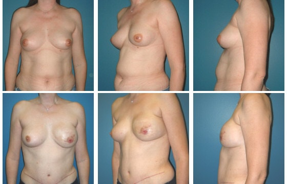 Breast Reconstruction Patient 11