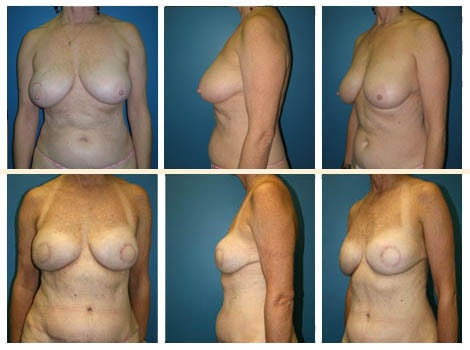 Breast Reconstruction Patient 4
