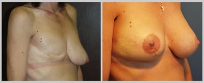 Breast Reconstruction Patient 5