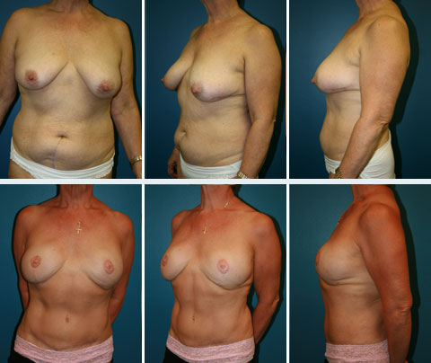 Breast Reconstruction Patient 6