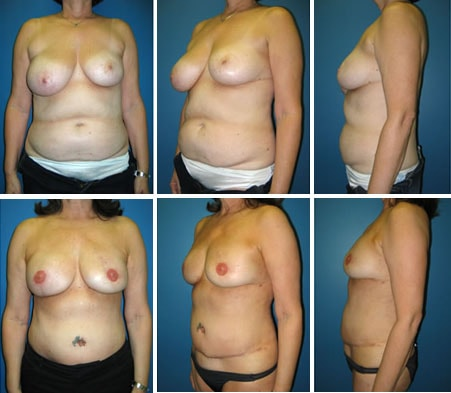 Breast Reconstruction Patient 7