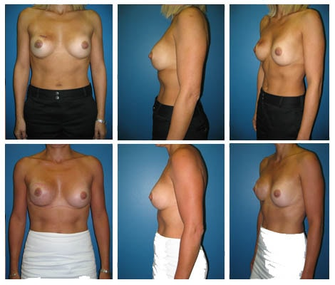 Breast Reconstruction Patient 8