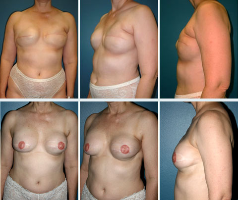 Breast Reconstruction Patient 9