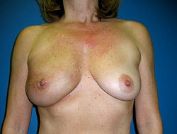 After Breast Reconstruction Patient 1