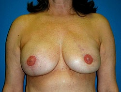 After Breast Reconstruction Patient 2