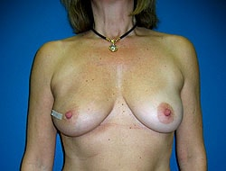 Before Breast Reconstruction Patient 1