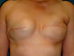 Before Breast Reconstruction Patient 3